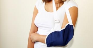 Midshaft Clavicle Fractures