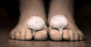 Mushrooms between the toes feet imitating nail fungus